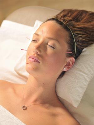 Acupuncture Research Rhinitus Myosense Doing What